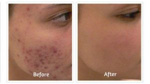 Revitol Acnezine Before and After