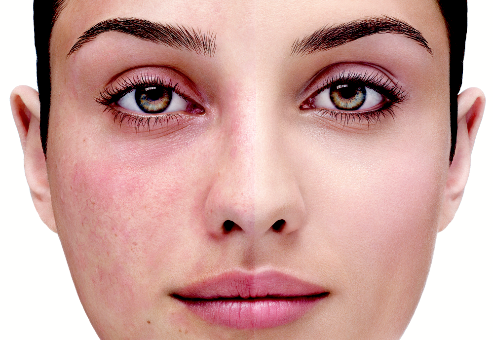 Rosacea Skin What You Need To Know Revitol Us