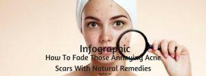 fade acne scars