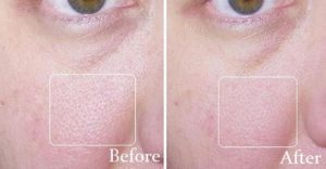 Revitol's Pore Minimizer Before and After
