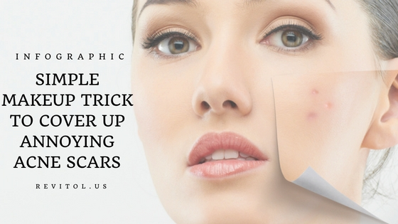 Tips to cover acne scars