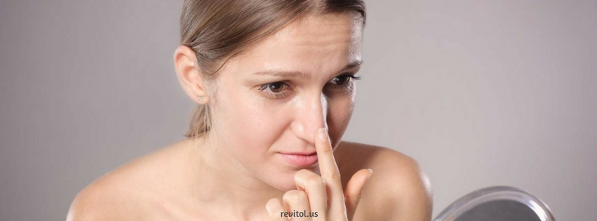 Treatment for Blackheads