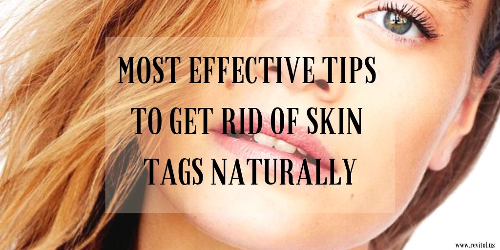 MOST EFFECTIVE TIPS TO GET RID OF SKIN TAGS NATURALLY