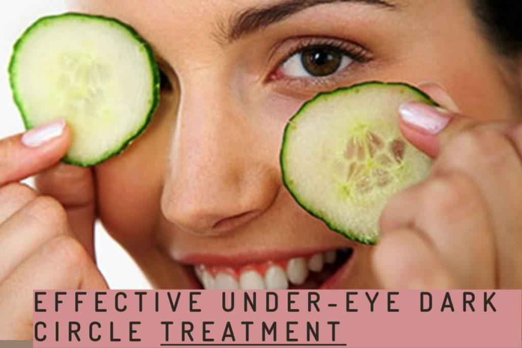dark circles under girl's eye