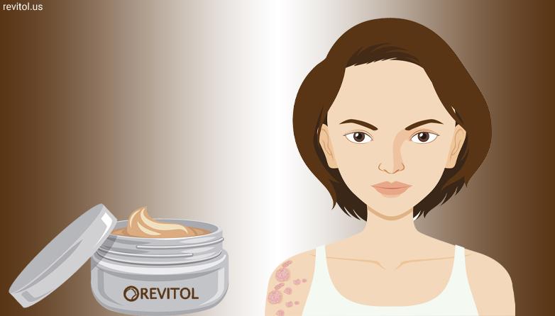 Dermasis The Best Cream For Psoriasis Treatment Revitol Us